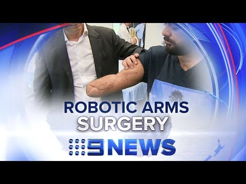 World-first surgery for two robotic arms | Nine News Australia