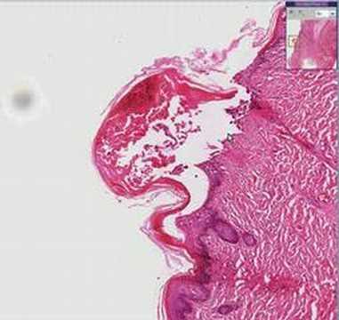 Histopathology Skin--Varicella (chicken pox)