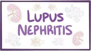LUPUS NEFRITIS STORY |Sakit Lupus Demam dan Badan Sakit.