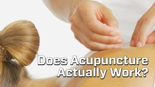 Junk Science Episode 11: Acupuncture