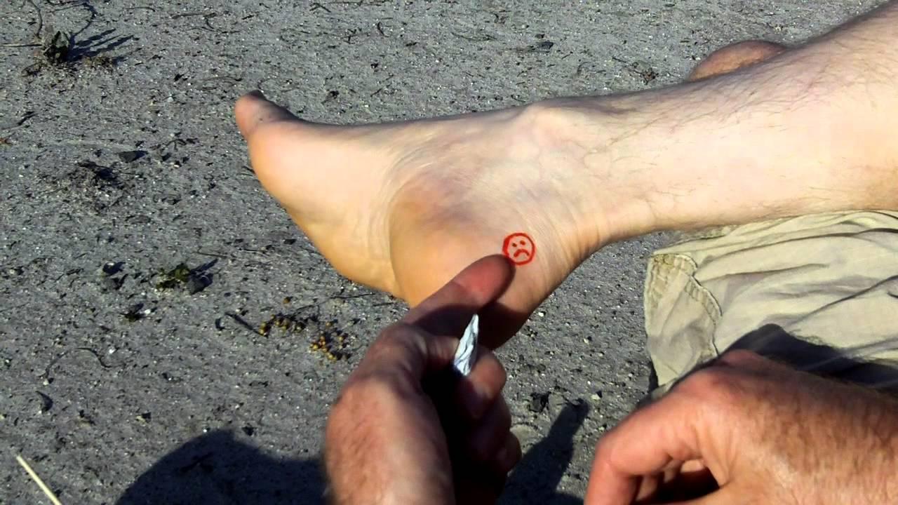 moleskin hiking blisters