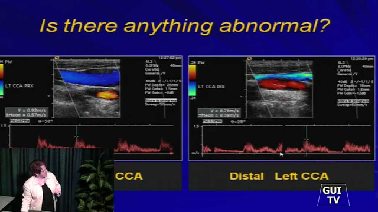 Study ultrasound in canada