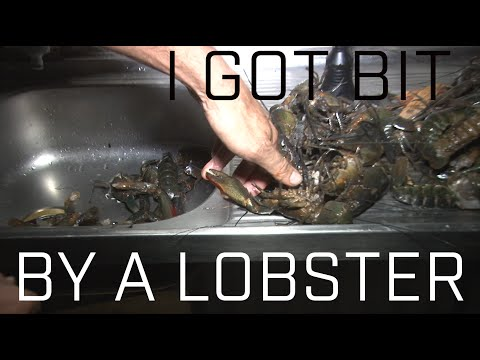 Stupid Guy Gets Bit By Lobster thumbnail