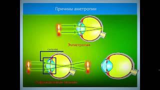 видео Аномалии рефракции глаза