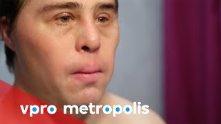 Plastic surgery with down syndrome in Spain - vpro Metropolis thumbnail