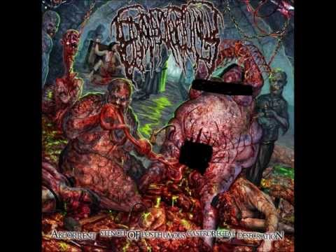 Epicardiectomy - Catheteric Hacksaw Urethral Dissection
