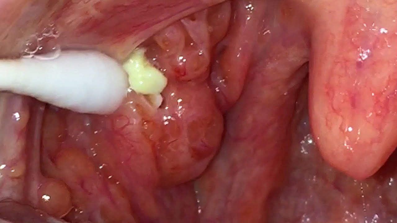 calcium stones deep in throat