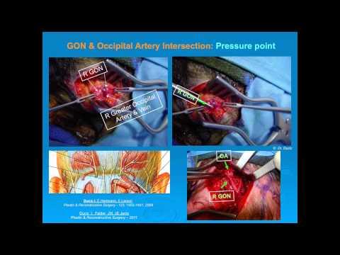 Suboccipital Nerve Blocks to Treat Occipital Neuralgia: Explained by John E. Stavrakos, MD.