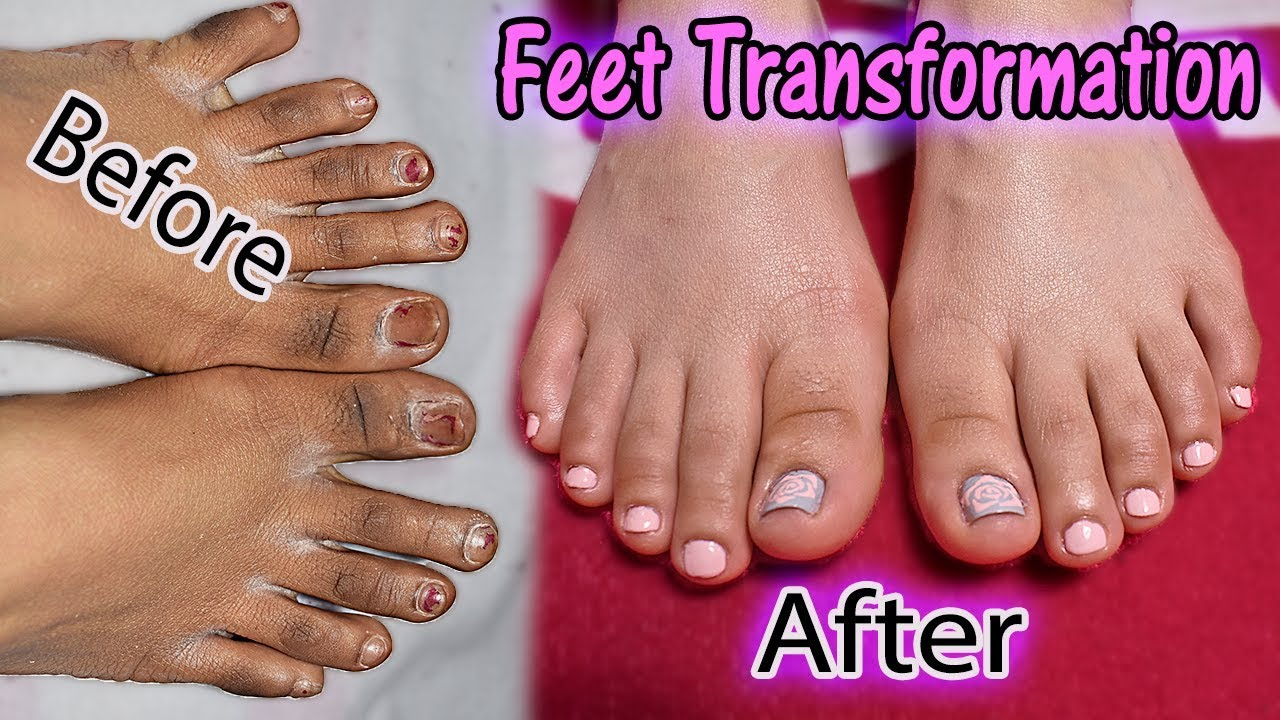 Fugly Feet Transformation Diy Salon Perfect Pedicure At Home Get Summer Ready With Me