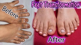 FUGLY Feet Transformation! | DIY Salon Perfect Pedicure At Home! | Get Summer Ready With Me!