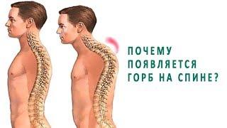 почему появляется горб на спине и как его убрать?