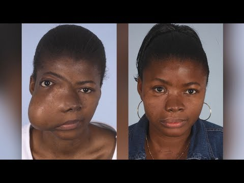 Maxillofacial Surgery: Changing Faces, Changing Lives- Kadiatu's Story