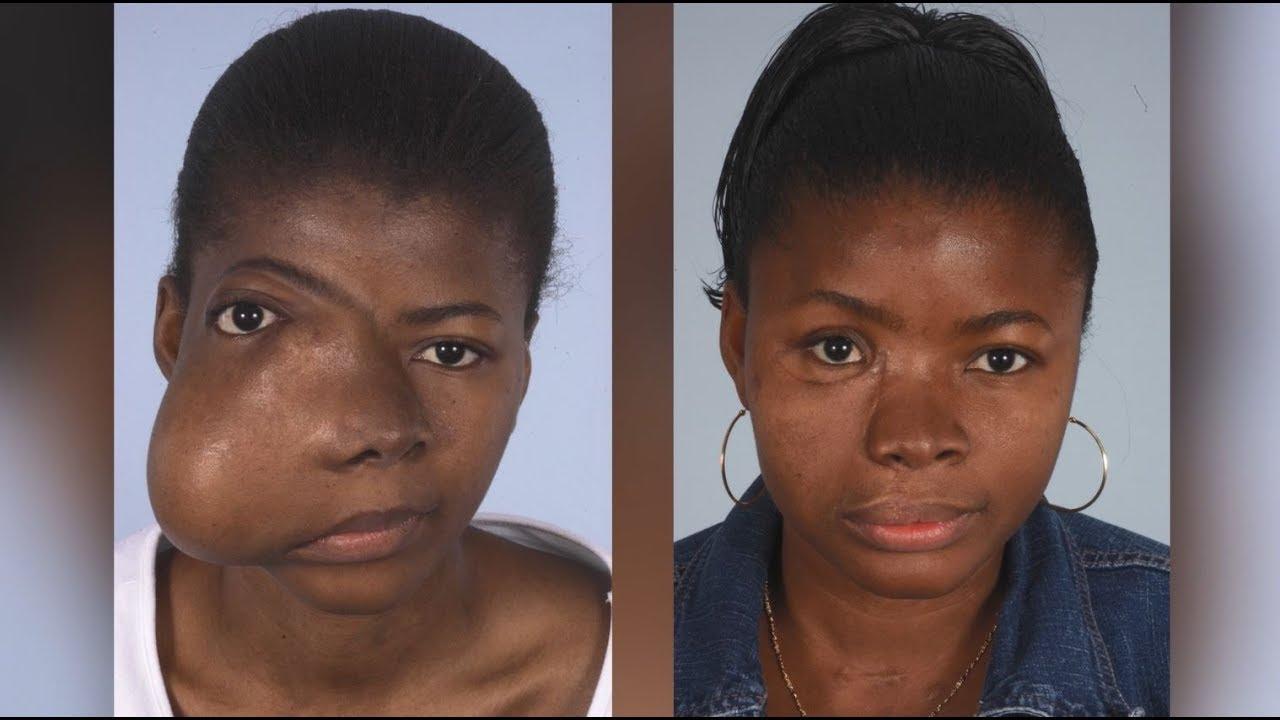 Facial Reconstructive Surgery | MedStar Plastic & Reconstructive Surgery