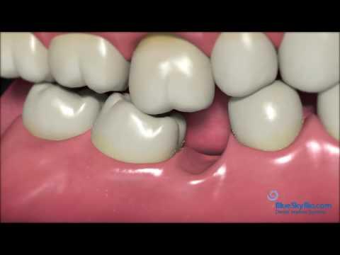 Dental  Implants Palm Beach Gardens