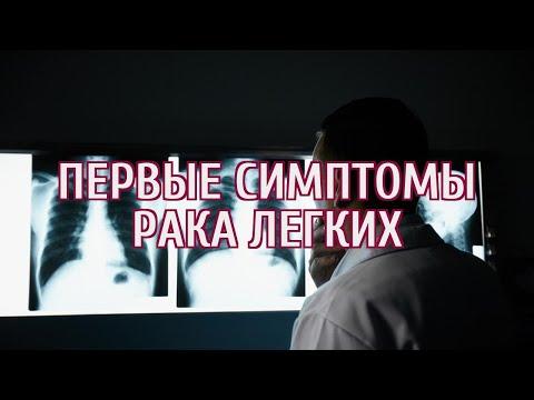 🔴 Россиянам назвали первые симптомы рака легких