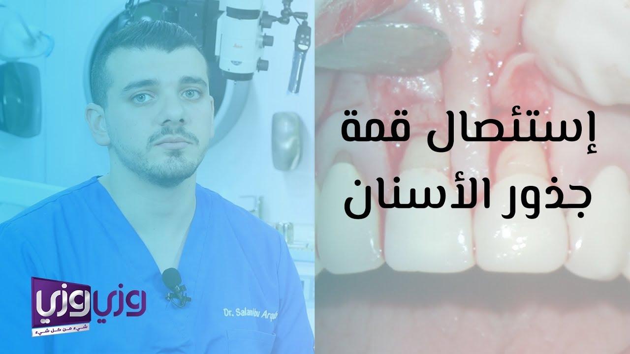 إستئصال قمة جذور الأسنان Youtube