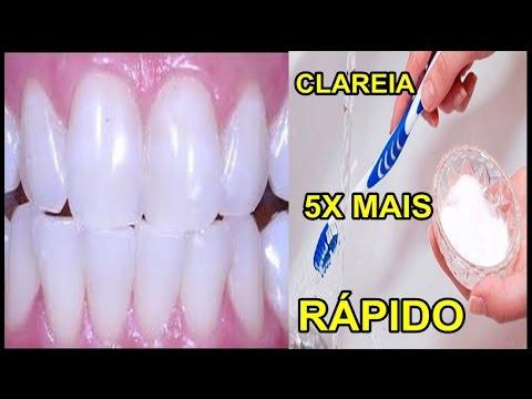 Como Clarear Os Dentes Na Hora Eliminar Tartaro E Gengivite Youtube