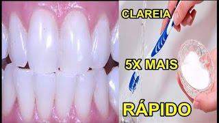Como Clarear os Dentes Na Hora! Eliminar Tártaro e Gengivite