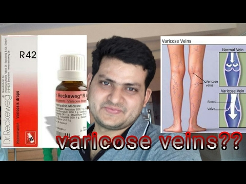 Homeopathic medicine for varicose veins?? explain! - YouTube