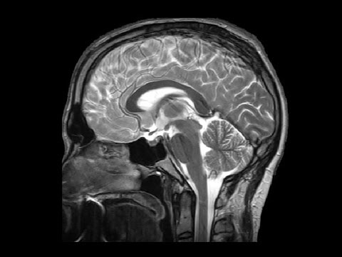 The Ventricles: Neuroanatomy Video Lab - Brain Dissections ...
