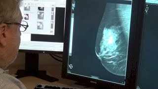 Do 3-D mammograms improve breast cancer screening?