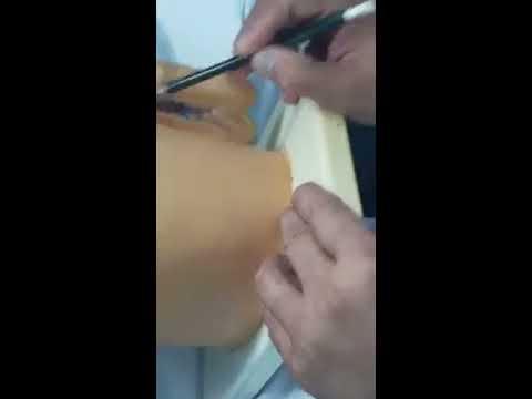 ANATOMÍA DEL SISTEMA REPRODUCTOR MASCULINO- VASOS- DR JURADO