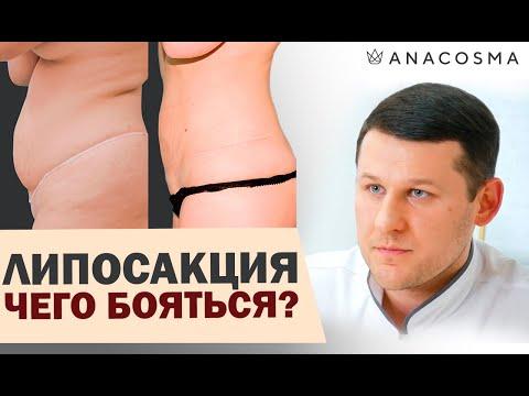Липосакция ❗️❗️❗️ОСЛОЖНЕНИЯ❗️❗️❗️Как можно похудеть и чего бояться❗️❗️ Миронов Андрей Борисович