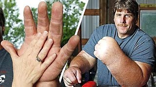 9 People With the Biggest Arms, Feet and More. You Won't Believe They Are Real