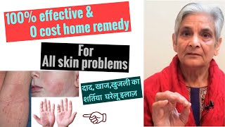 दाद, खाज,खुजली का शर्तिया घरेलू इलाज़,100% effective home remedy for all skin problems