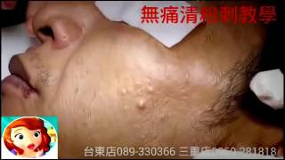 Biggest Zit Cyst Pop Ever ღ Best back cyst pimple popping ღ Most Amazing Pops 乂 part 8