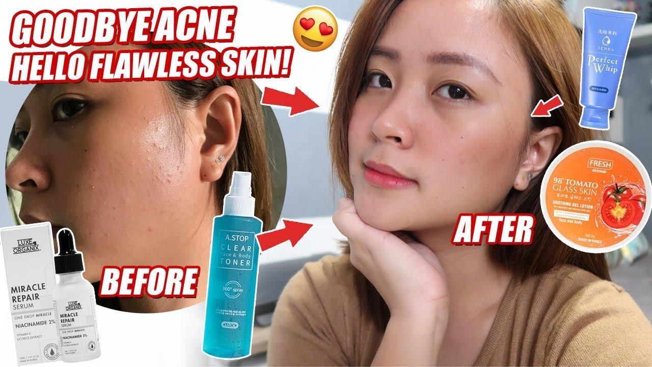 Skincare Routine 2018 Anti Acne Philippines By Kriszia M