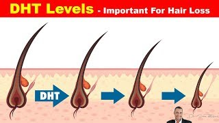 👱 High DHT Affects How Much Hair You Have On Your Head - Hair Loss Part 3