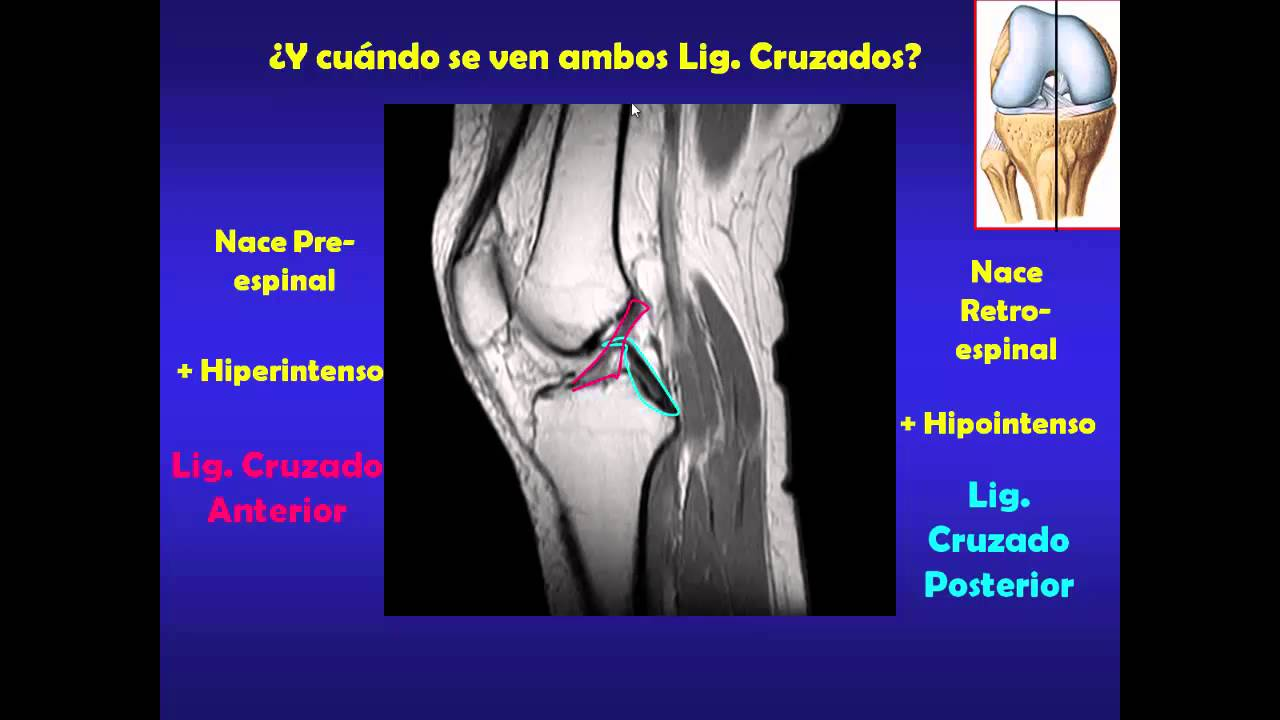 RODILLA, TOBILLO Y PIE - YouTube