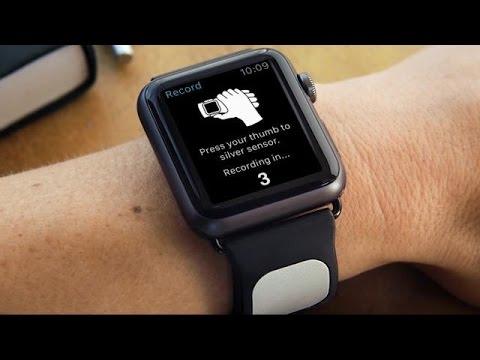 The Kardia Band Builds EKG Tech Into Apple Watch