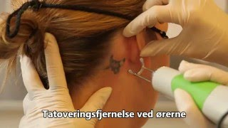 Tatoveringsfjernelse ved ørerne med Discovery Pico laser