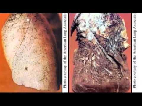 Amlodipine besylate side effects - YouTube