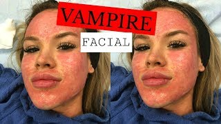 getting a vampire facial + live footage | DailyPolina