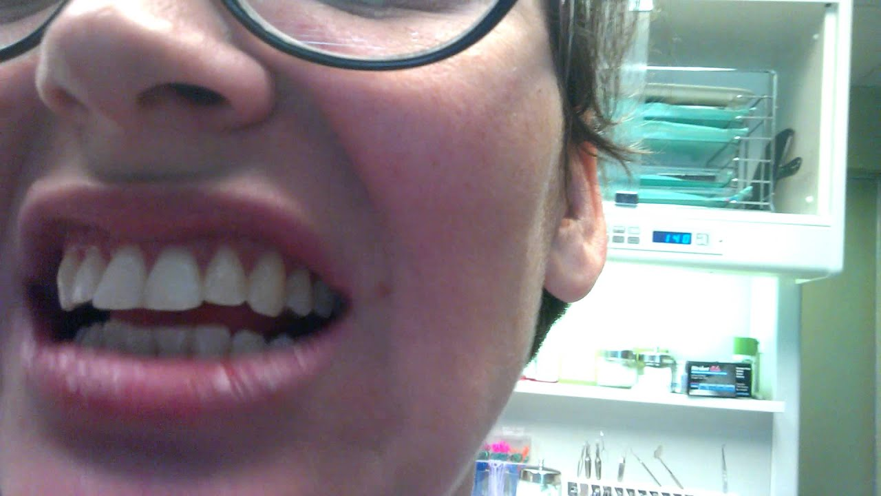 Me admitting I didn't wear my retainer - YouTube