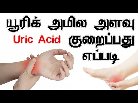 can gout raise blood sugar cherry pills for gout result of high uric acid