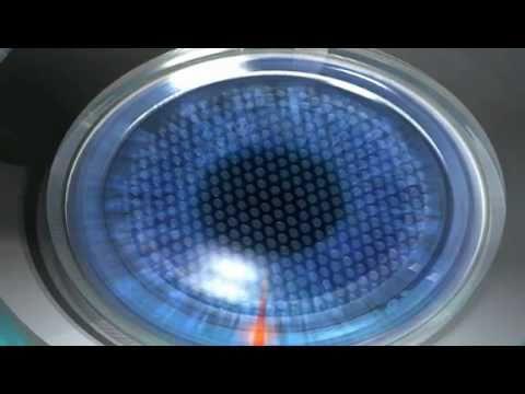 lasik 100 laser op ration des yeux centre laser new vision nice youtube. Black Bedroom Furniture Sets. Home Design Ideas