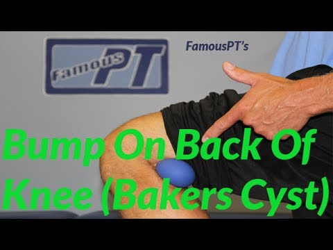 Bump On Back Of Knee? (Baker's Cyst, Popliteal Cyst)
