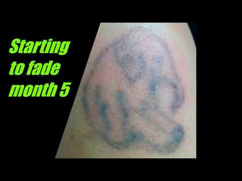 thINK Tattoo Removal Cream (2018)