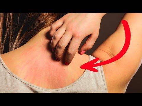 DIESE 7 Krebssymptome missachten 90% der Menschen!