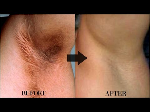 How To Lighten Dark Neck Naturally I BEFORE AND AFTER P ...