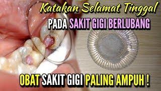 Obat Sakit Gigi Berlubang Paling Ampuh || Cara Mengobati Sakit Gigi Yang Berlubang.