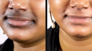 How to Remove Dark / Black Patches Around Mouth in Tamil