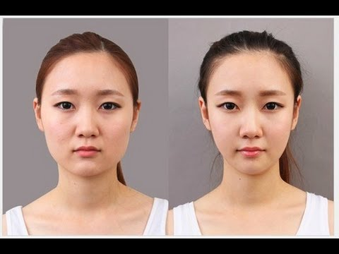 Korean Plastic Surgery Pictures Go Viral