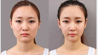 'Korean Plastic Surgery' Pictures Go Viral