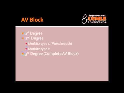 AV Block - 1st degree, Wenckebach, Morbitz type 2 & 3rd degree