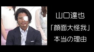 "TOKIO山口達也「顔面大けが」の本当の理由 True reason of ""the face se..."